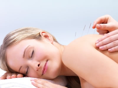 Acupuncture in Adelaide