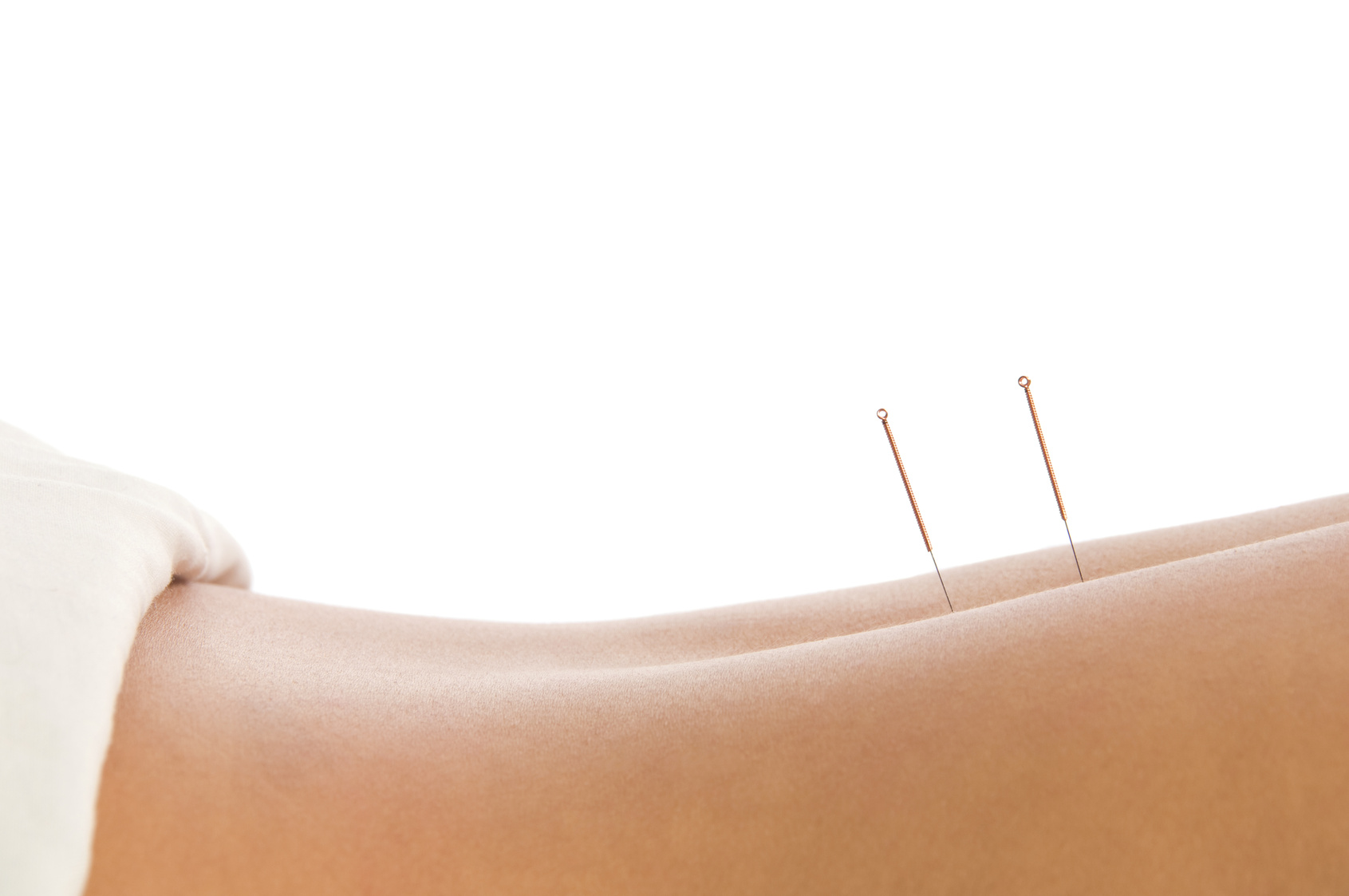 Adelaide Acupuncture Clinic